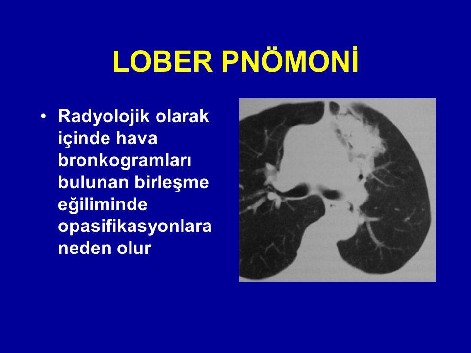 LOBER PNÖMONİ Radyolojik olarak içinde hava bronkogramları bulunan birleşme eğiliminde opasifikasyonlara neden olur.
