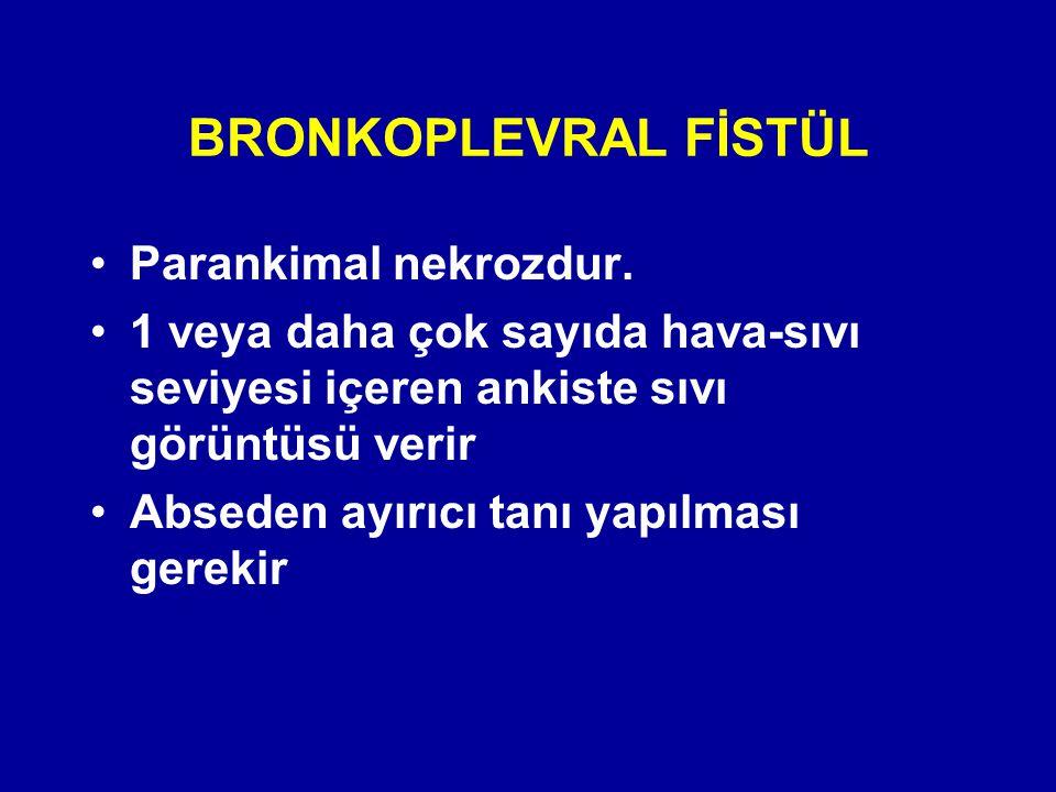 BRONKOPLEVRAL FİSTÜL Parankimal nekrozdur.