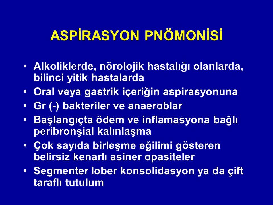 ASPİRASYON PNÖMONİSİ Alkoliklerde, nörolojik hastalığı olanlarda, bilinci yitik hastalarda. Oral veya gastrik içeriğin aspirasyonuna.