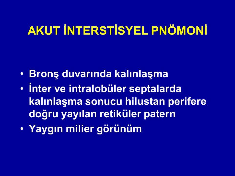 AKUT İNTERSTİSYEL PNÖMONİ
