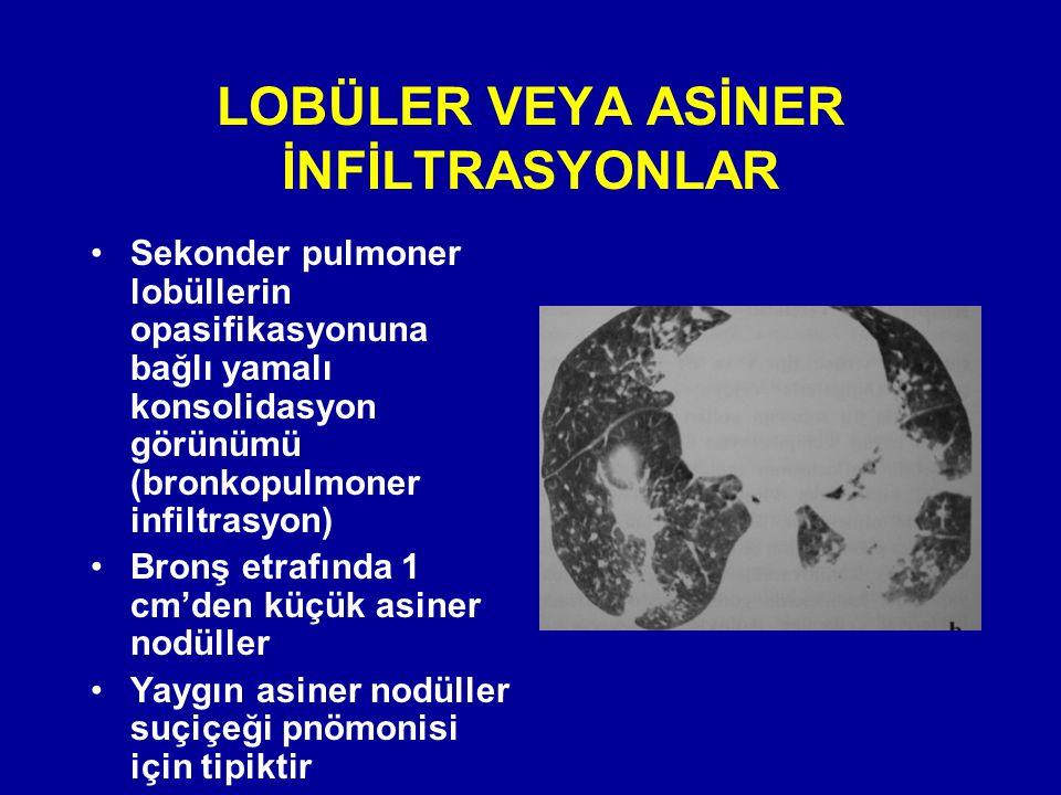 LOBÜLER VEYA ASİNER İNFİLTRASYONLAR