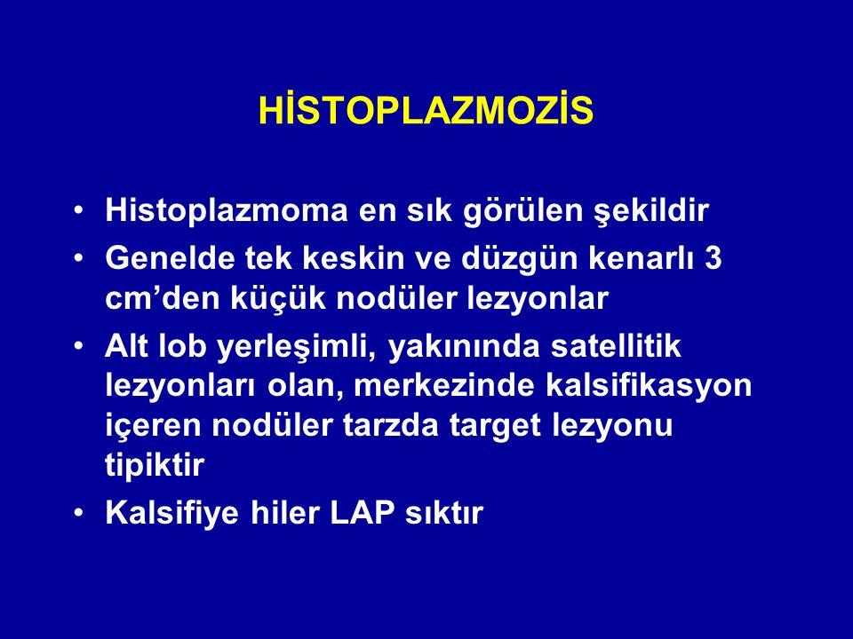 HİSTOPLAZMOZİS Histoplazmoma en sık görülen şekildir