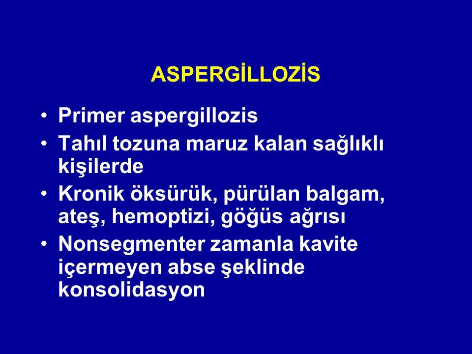 ASPERGİLLOZİS Primer aspergillozis. Tahıl tozuna maruz kalan sağlıklı kişilerde. Kronik öksürük, pürülan balgam, ateş, hemoptizi, göğüs ağrısı.