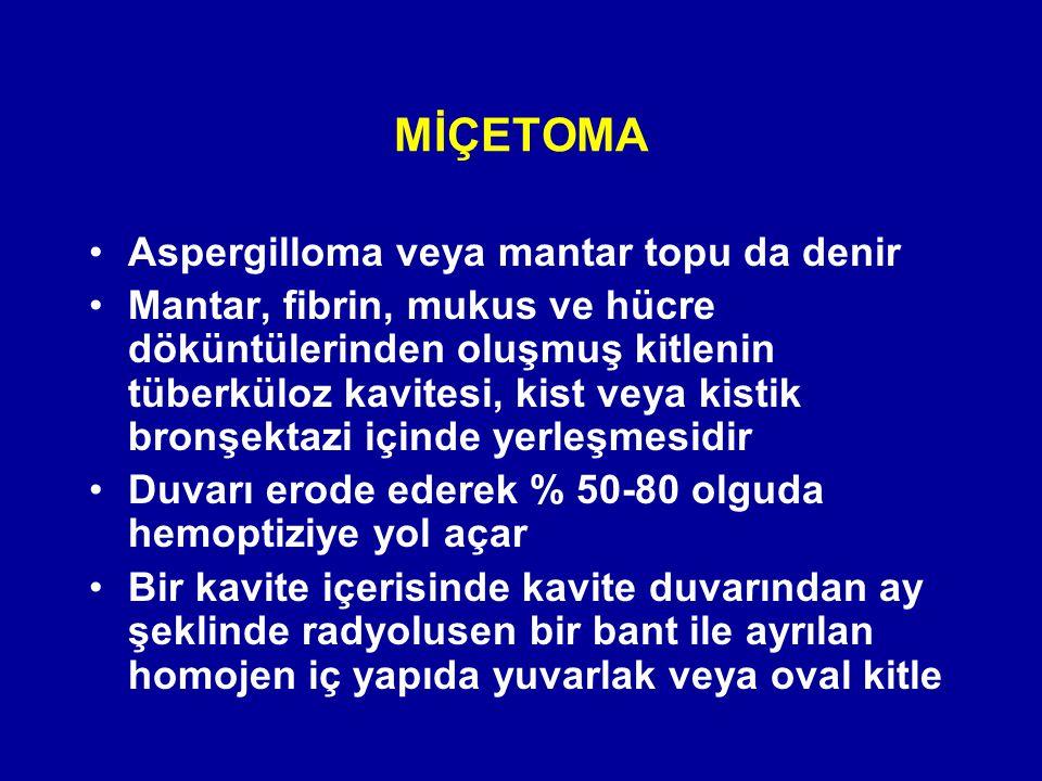 MİÇETOMA Aspergilloma veya mantar topu da denir