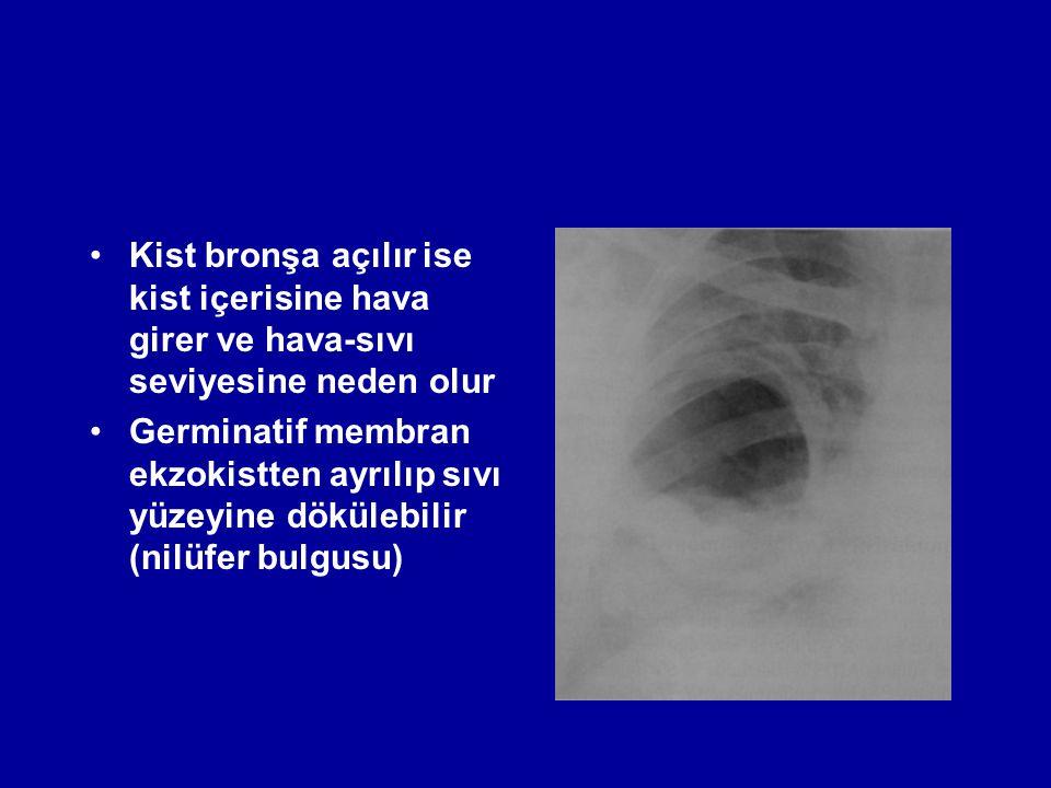 Kist bronşa açılır ise kist içerisine hava girer ve hava-sıvı seviyesine neden olur