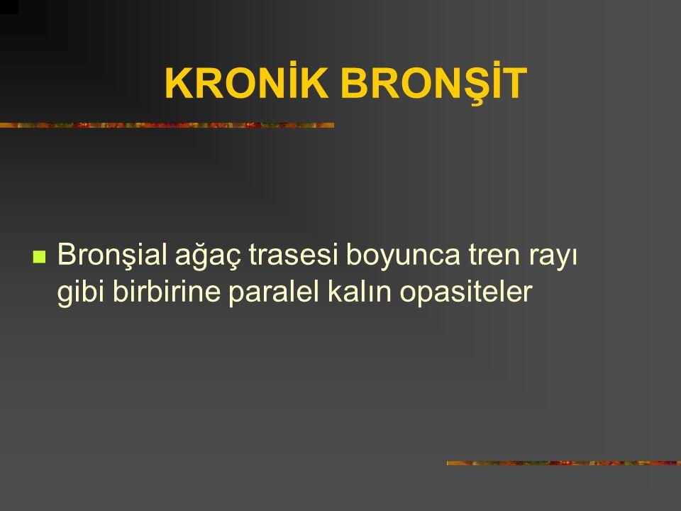 KRONİK BRONŞİT Bronşial ağaç trasesi boyunca tren rayı gibi birbirine paralel kalın opasiteler