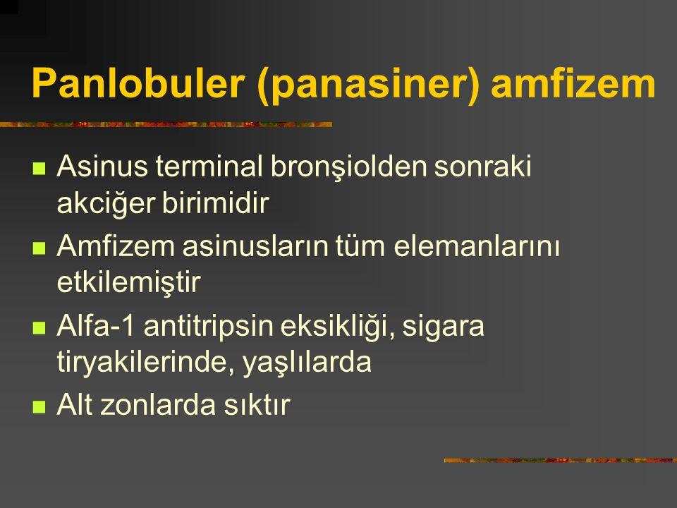 Panlobuler (panasiner) amfizem