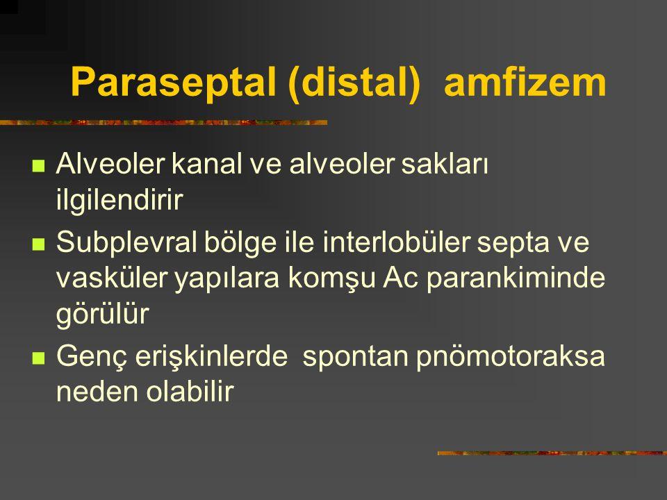 Paraseptal (distal) amfizem