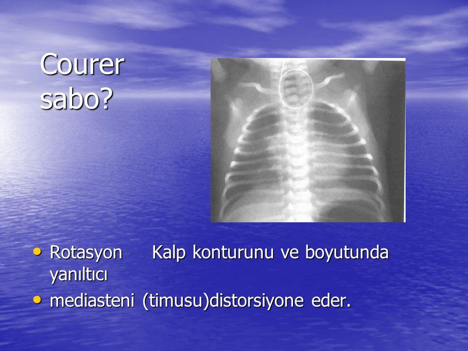 Courer sabo Rotasyon Kalp konturunu ve boyutunda yanıltıcı