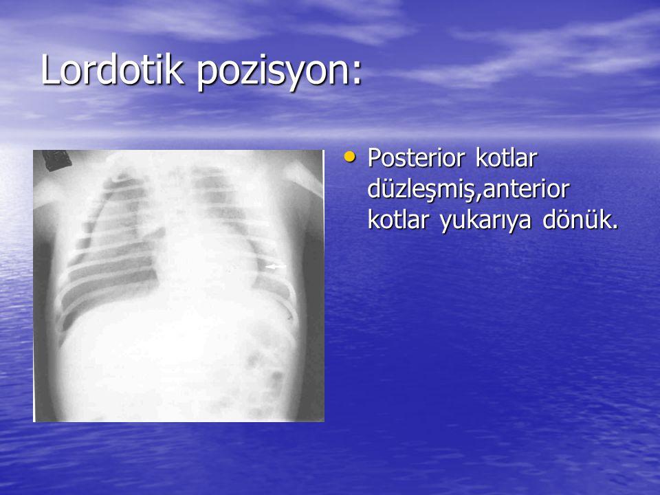 Lordotik pozisyon: Posterior kotlar düzleşmiş,anterior kotlar yukarıya dönük.