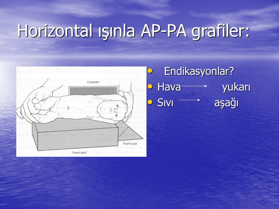 Horizontal ışınla AP-PA grafiler:
