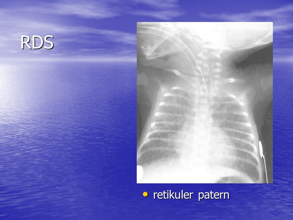 RDS retikuler patern