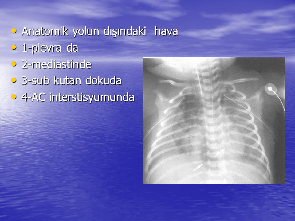 Anatomik yolun dışındaki hava