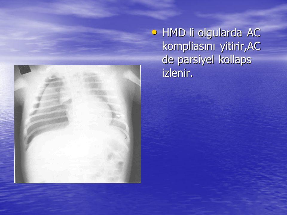 HMD li olgularda AC kompliasını yitirir,AC de parsiyel kollaps izlenir.
