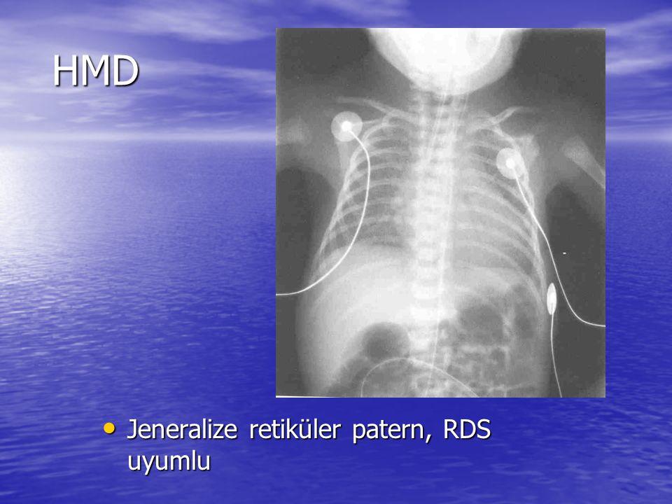 HMD Jeneralize retiküler patern, RDS uyumlu
