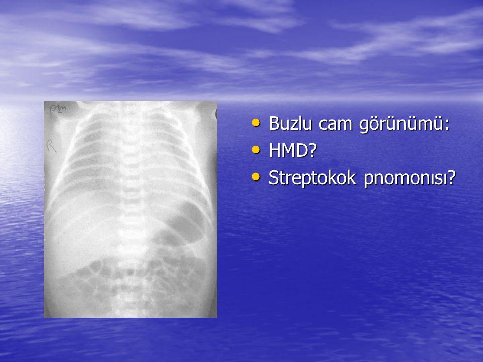 Buzlu cam görünümü: HMD Streptokok pnomonısı