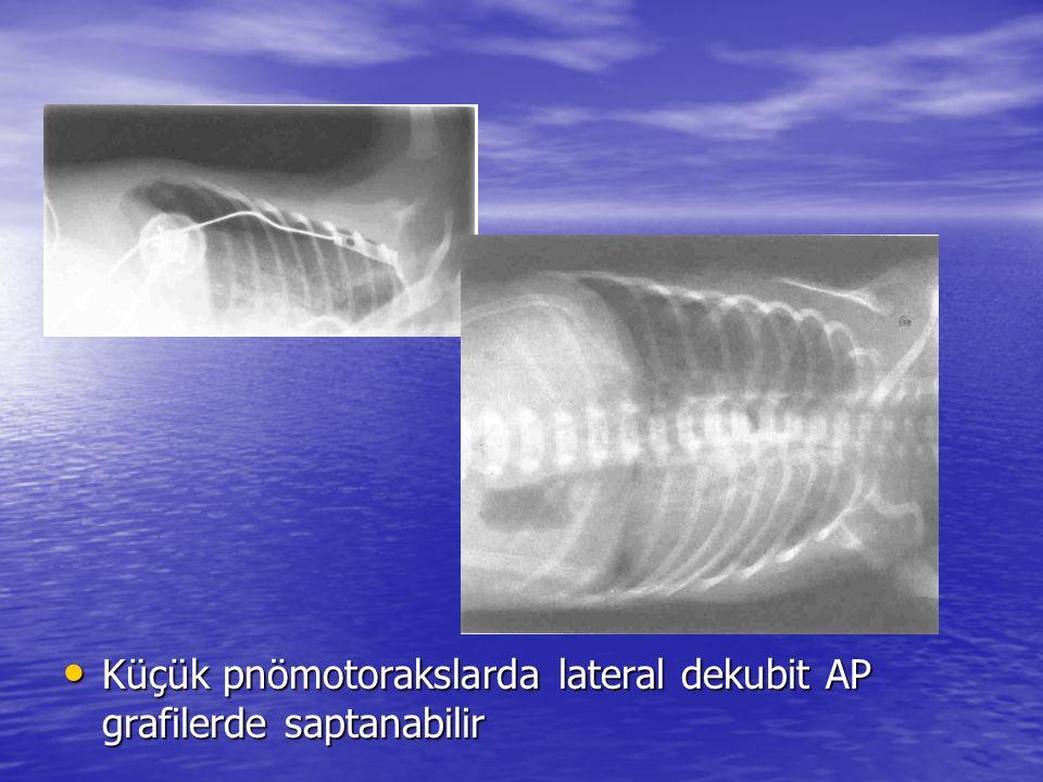 Küçük pnömotorakslarda lateral dekubit AP grafilerde saptanabilir