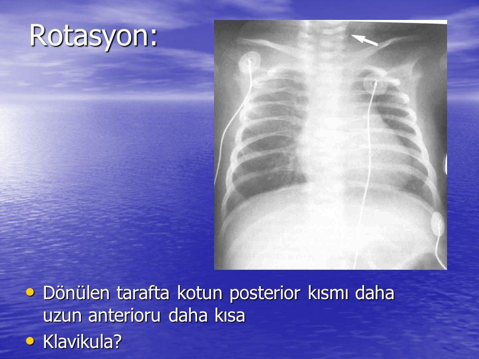 Rotasyon: Dönülen tarafta kotun posterior kısmı daha uzun anterioru daha kısa Klavikula