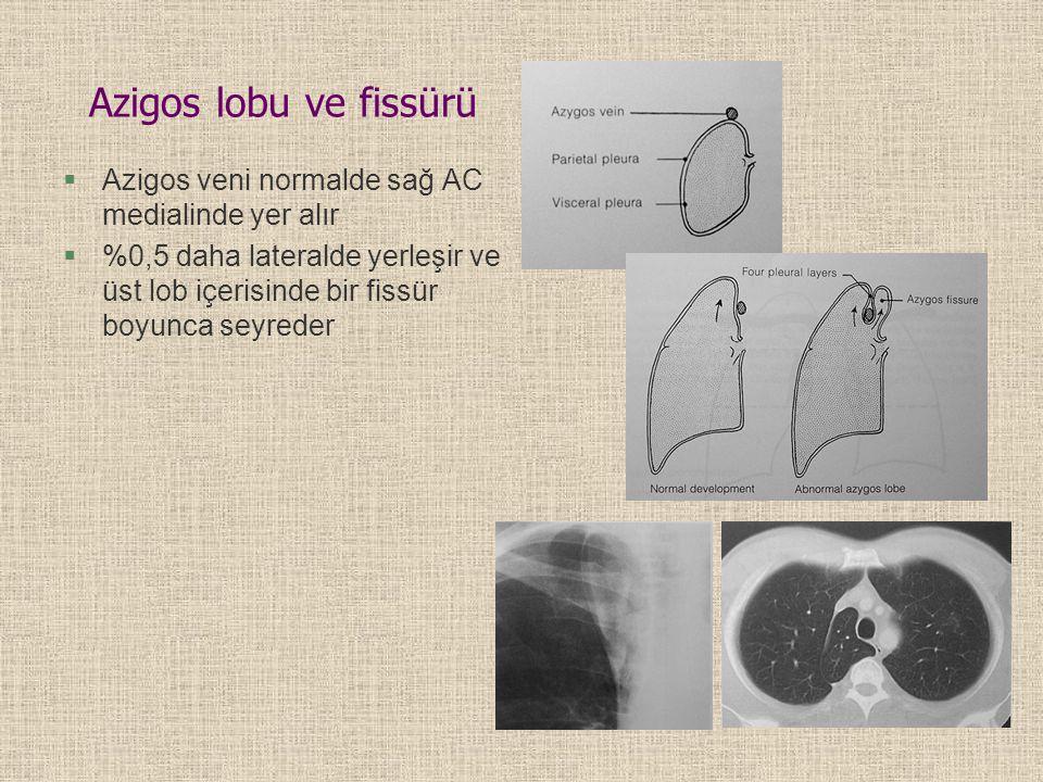Azigos lobu ve fissürü Azigos veni normalde sağ AC medialinde yer alır