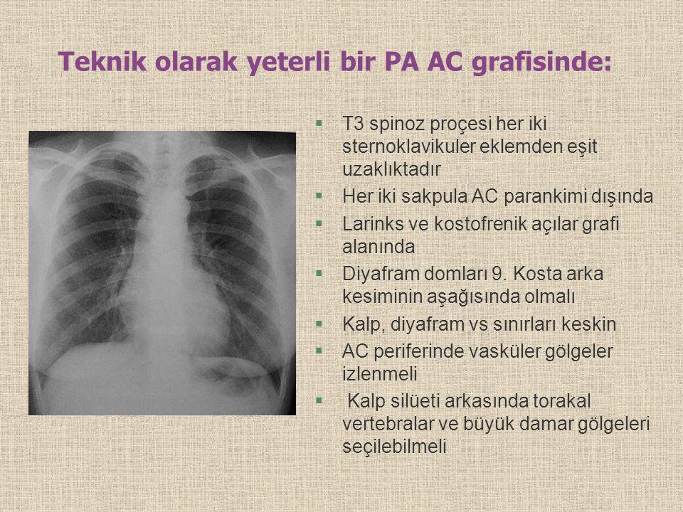 Teknik olarak yeterli bir PA AC grafisinde: