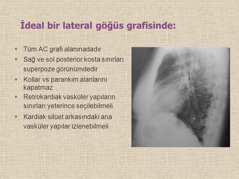 İdeal bir lateral göğüs grafisinde: