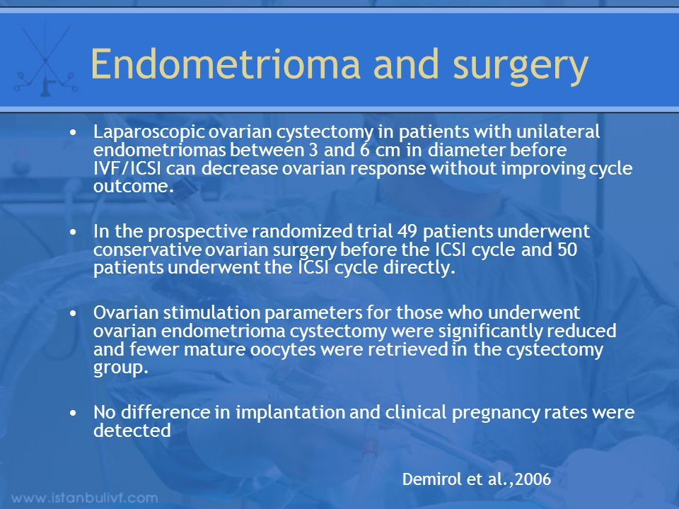 Endometrioma and surgery