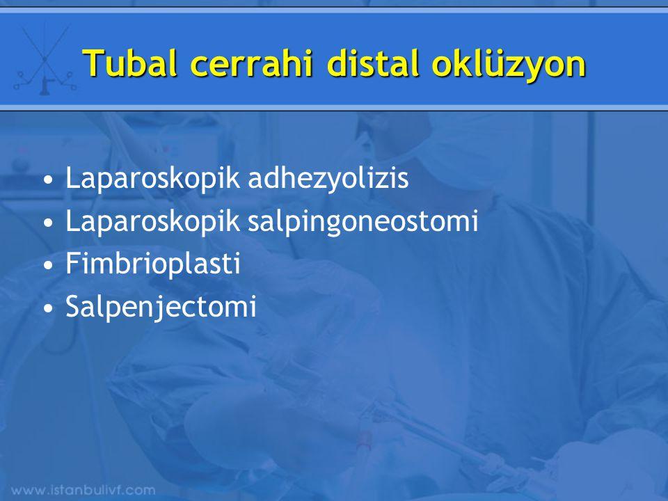 Tubal cerrahi distal oklüzyon