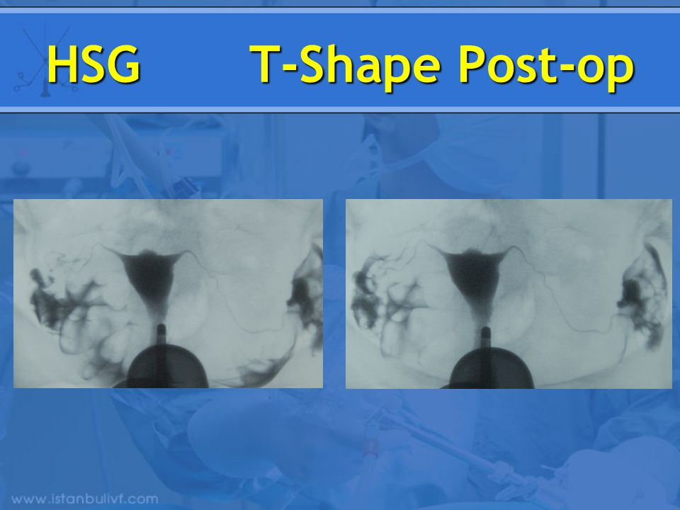 HSG T-Shape Post-op