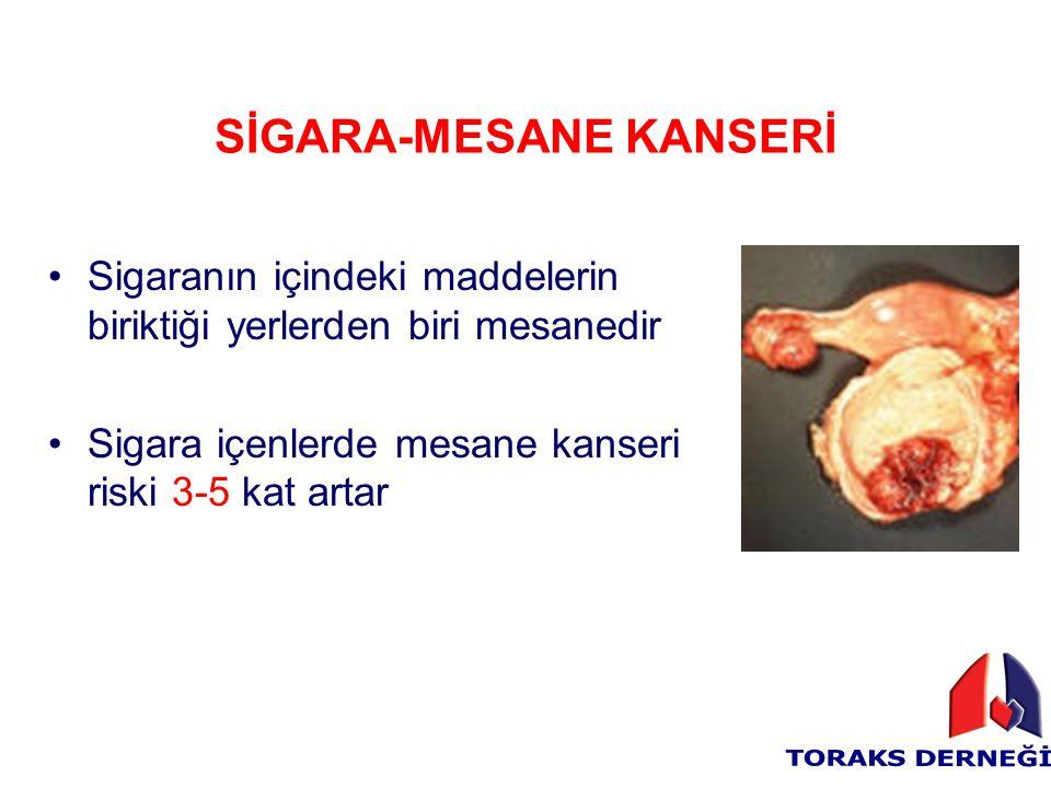 SİGARA-MESANE KANSERİ