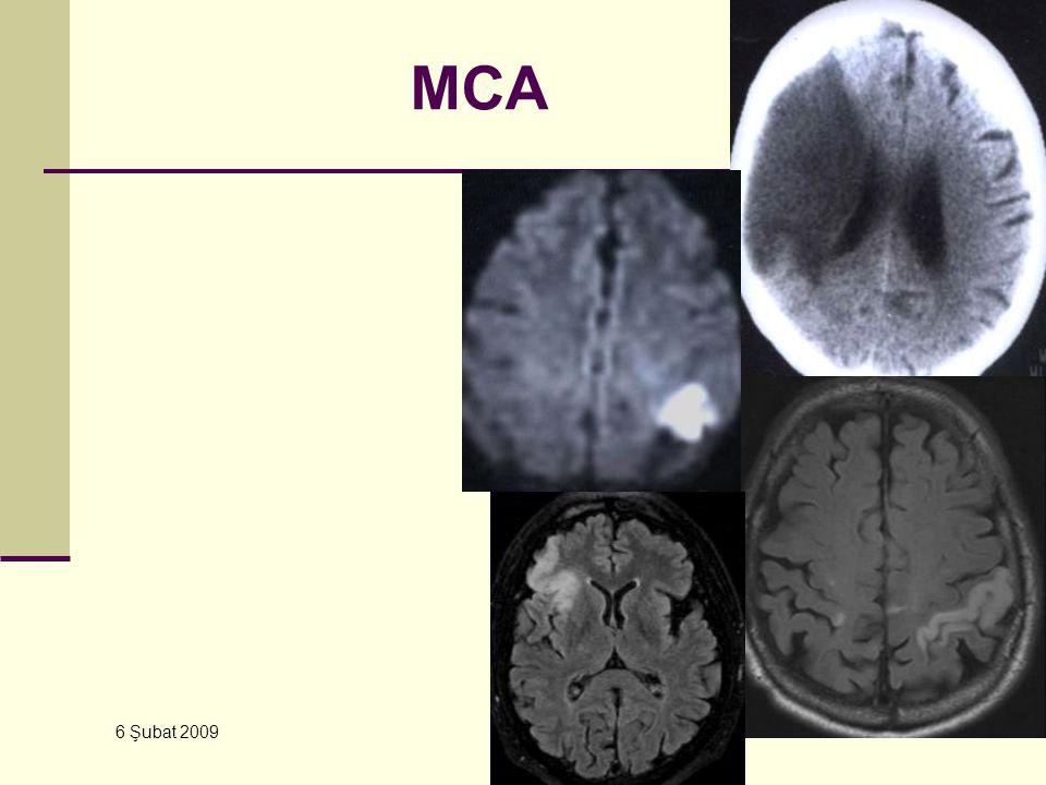 MCA 6 Şubat 2009 YBU – Kursu