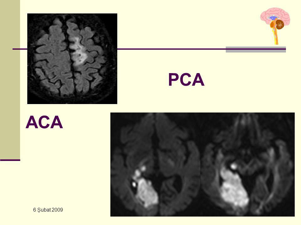 PCA ACA 6 Şubat 2009 YBU – Kursu