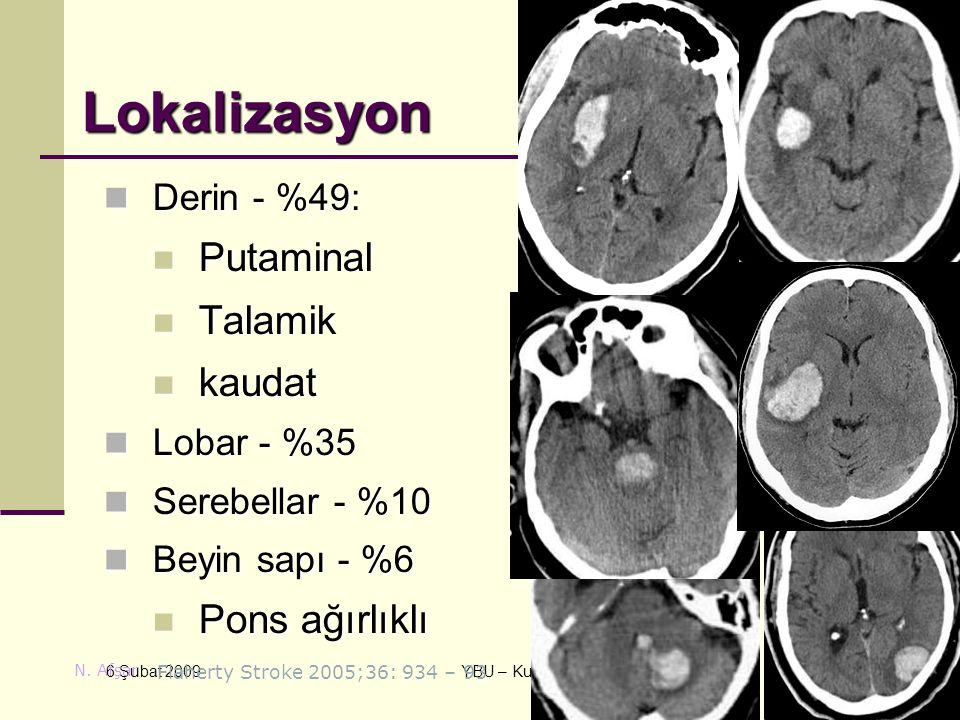 Lokalizasyon Putaminal Talamik kaudat Pons ağırlıklı Derin - %49: