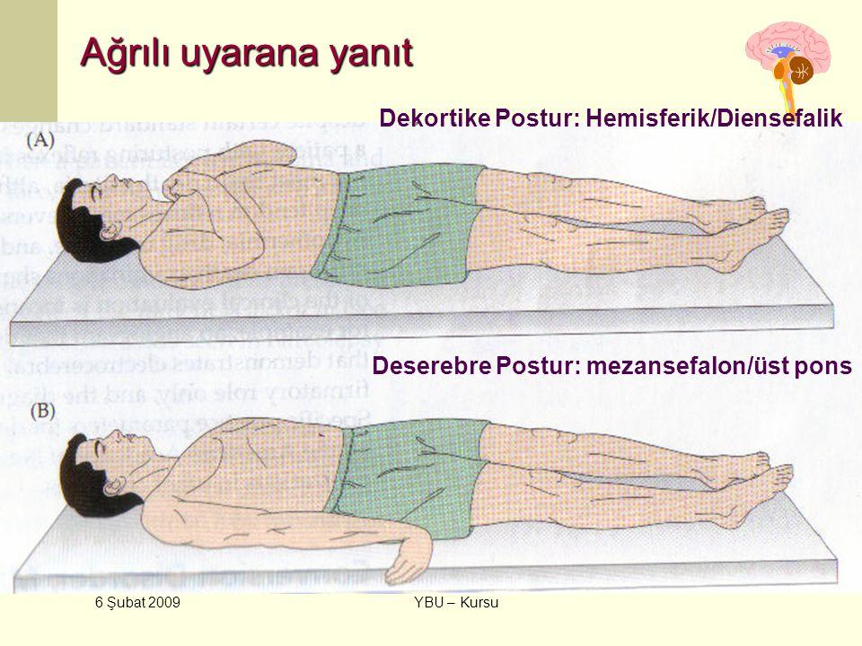 Ağrılı uyarana yanıt Dekortike Postur: Hemisferik/Diensefalik