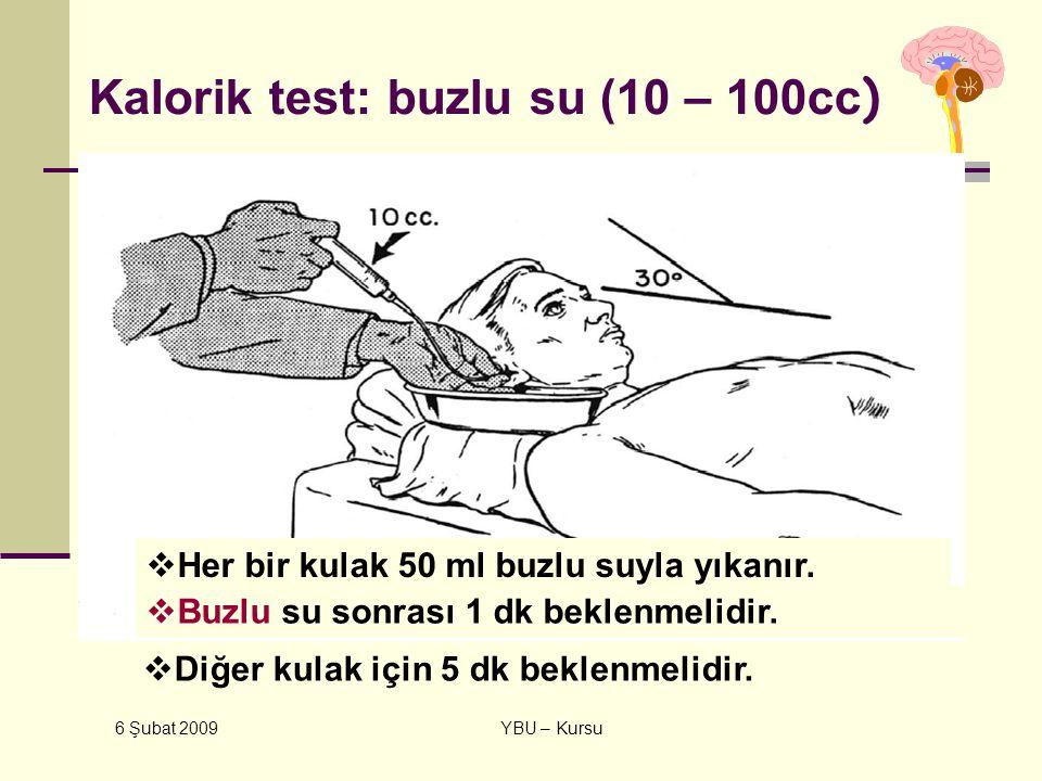 Kalorik test: buzlu su (10 – 100cc)