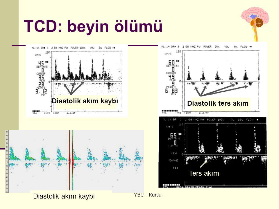TCD: beyin ölümü Diastolik akım kaybı Diastolik ters akım Ters akım