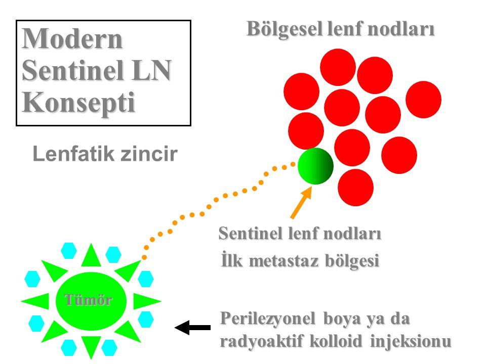 Modern Sentinel LN Konsepti
