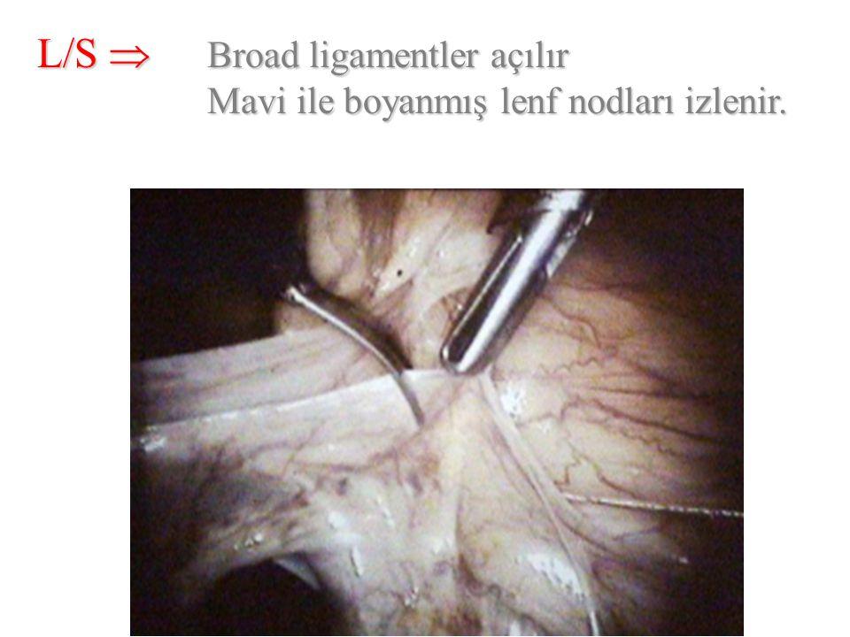 L/S  Broad ligamentler açılır