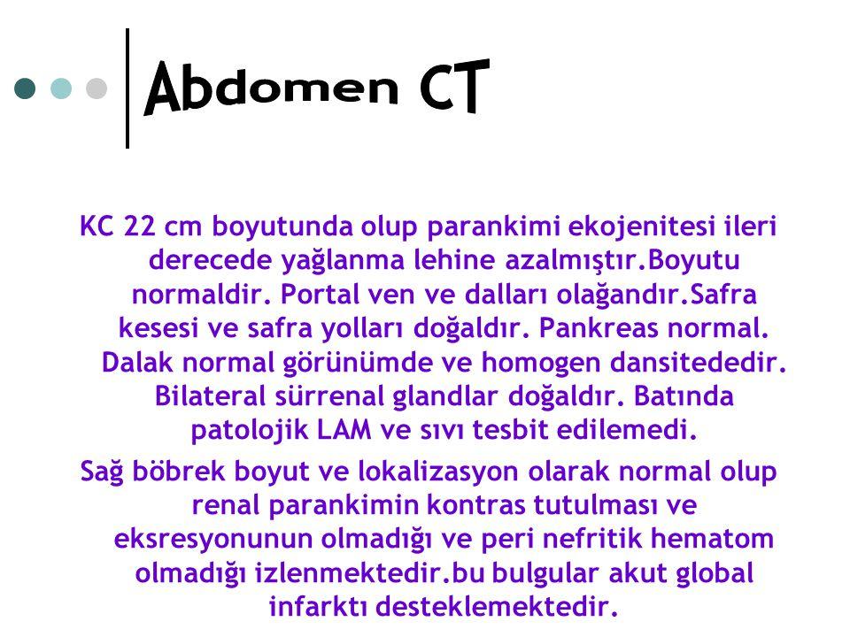 Abdomen CT