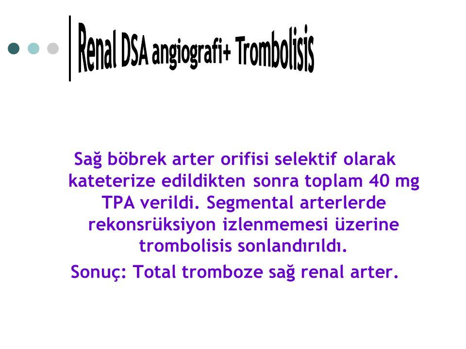 Renal DSA angiografi+ Trombolisis