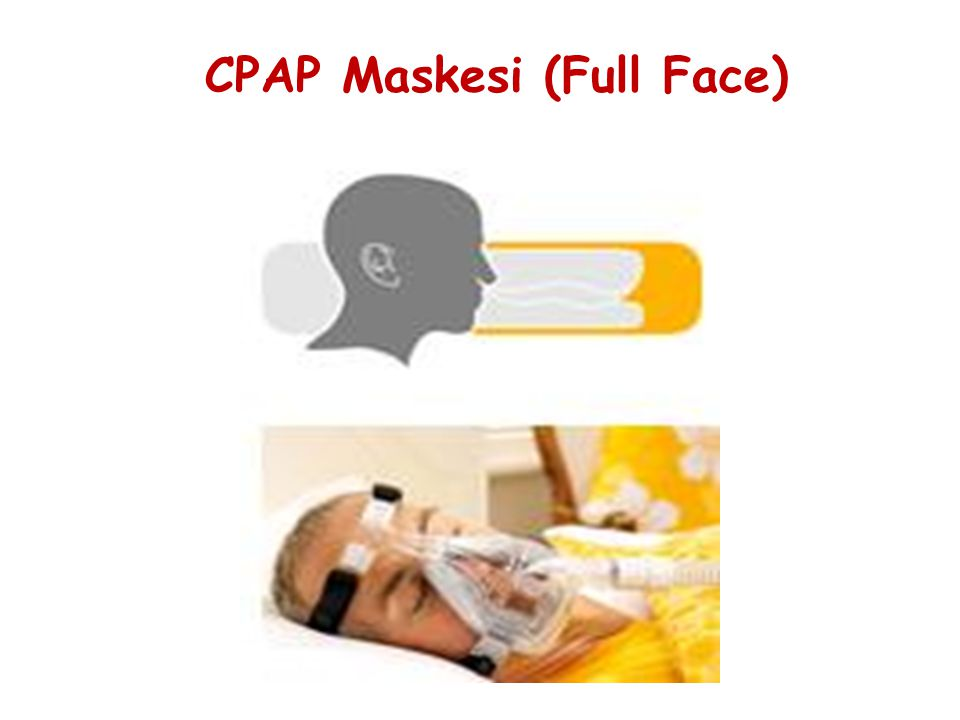 CPAP Maskesi (Full Face)