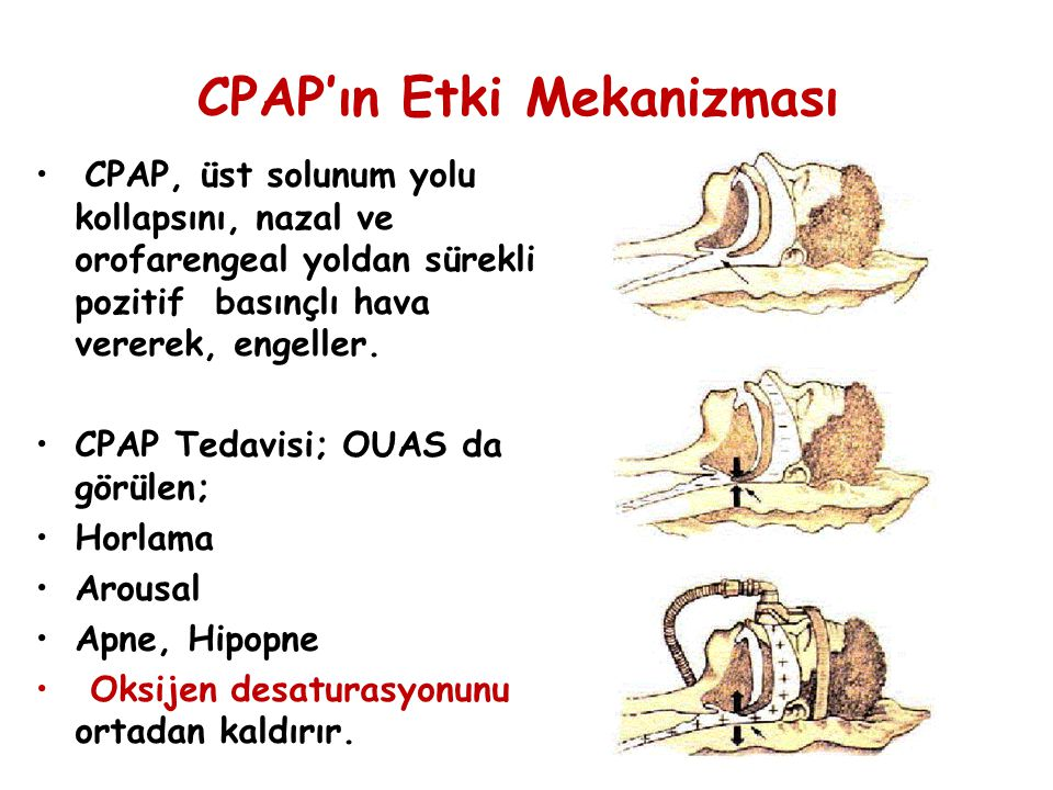 CPAP'ın Etki Mekanizması