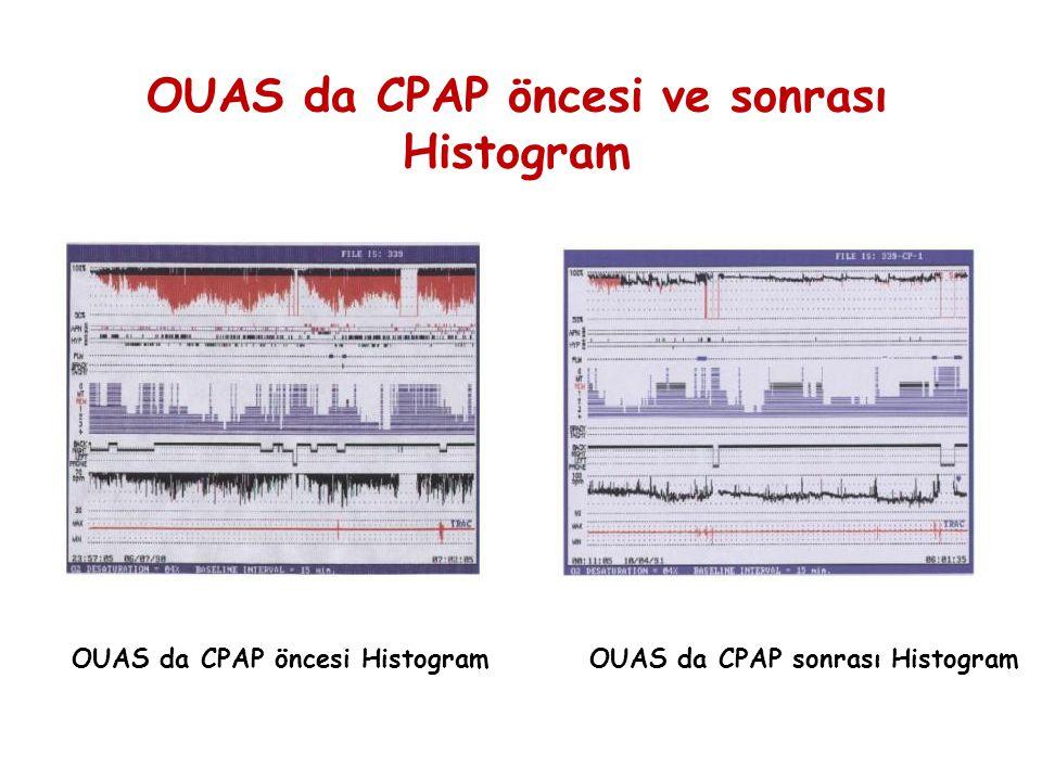 OUAS da CPAP öncesi ve sonrası Histogram