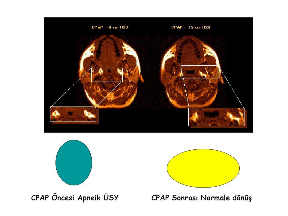 CPAP Öncesi Apneik ÜSY CPAP Sonrası Normale dönüş