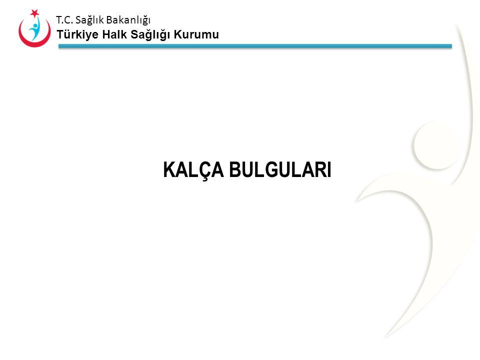 KALÇA BULGULARI