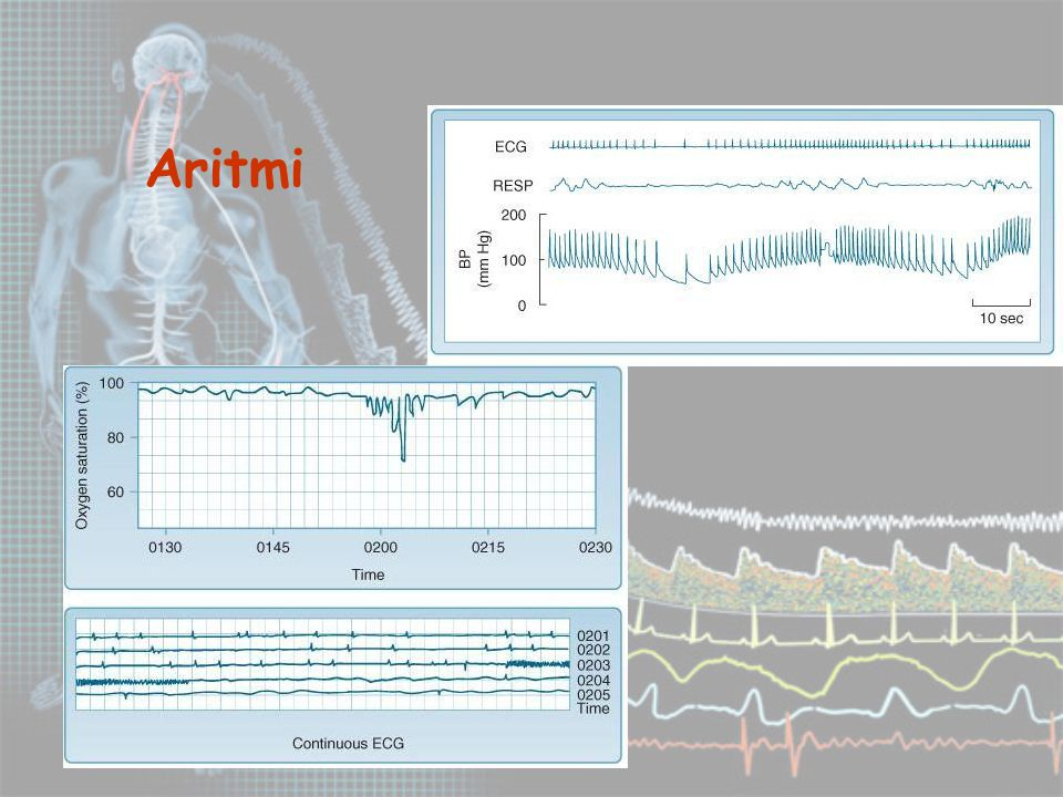 Aritmi