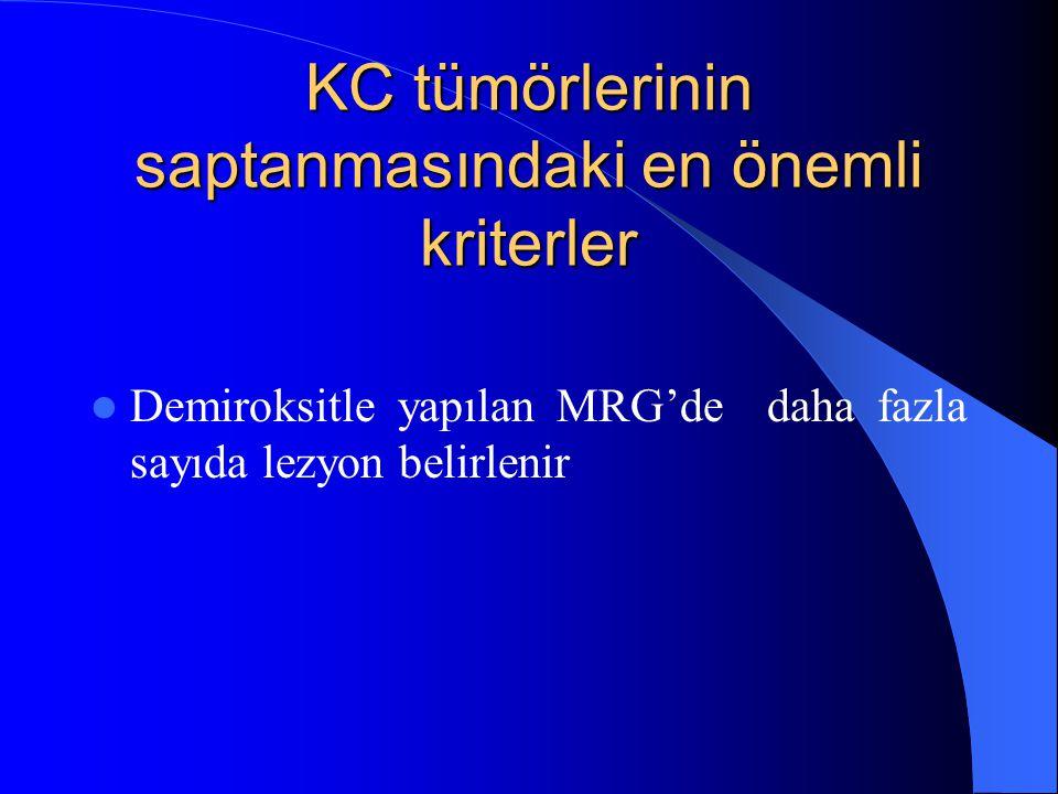 KC tümörlerinin saptanmasındaki en önemli kriterler