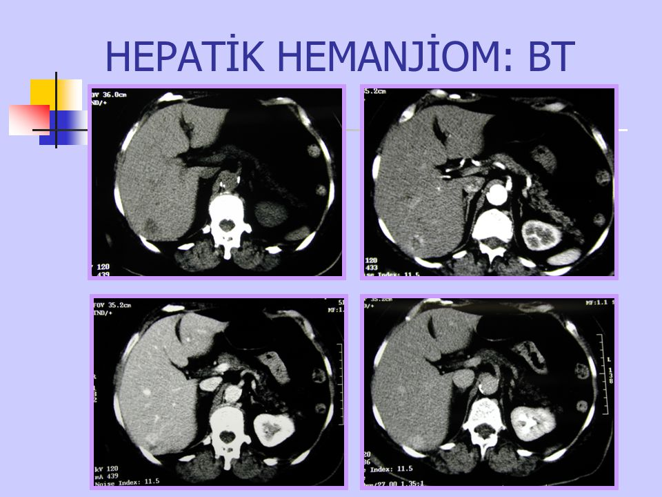 HEPATİK HEMANJİOM: BT