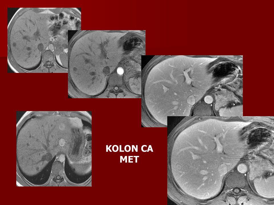 KOLON CA MET