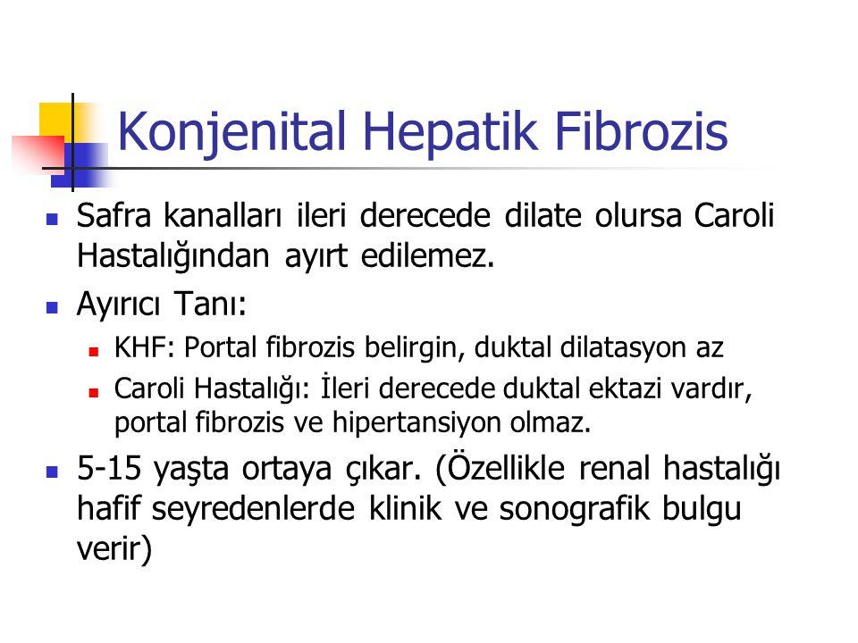 Konjenital Hepatik Fibrozis