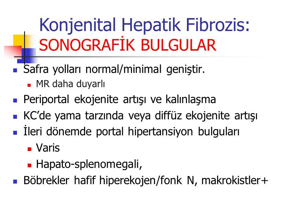 Konjenital Hepatik Fibrozis: SONOGRAFİK BULGULAR